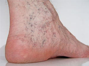 Spider veins on a foot